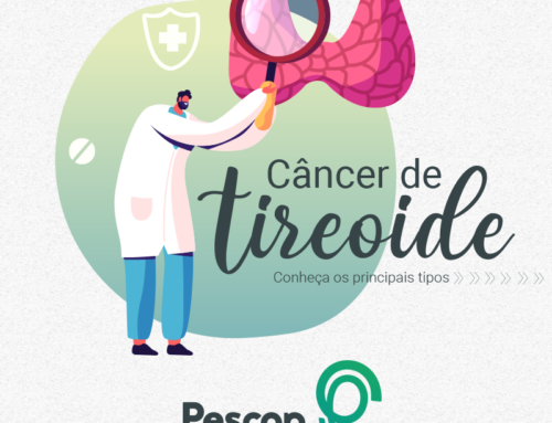 Conheça os Principais tipos de Câncer de Tireoide
