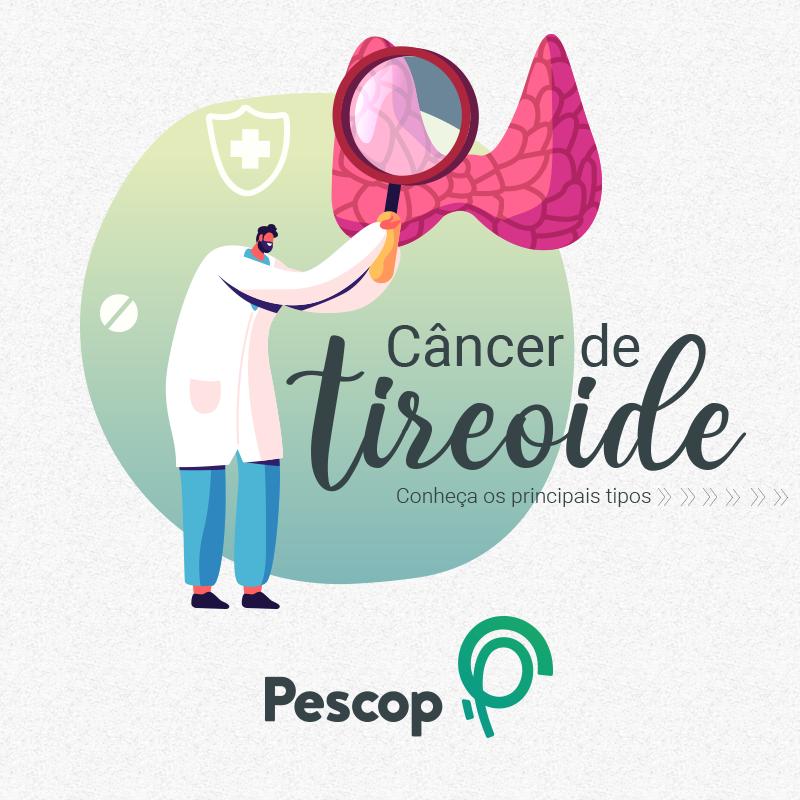Cancer de tireoide _ Principais tipos