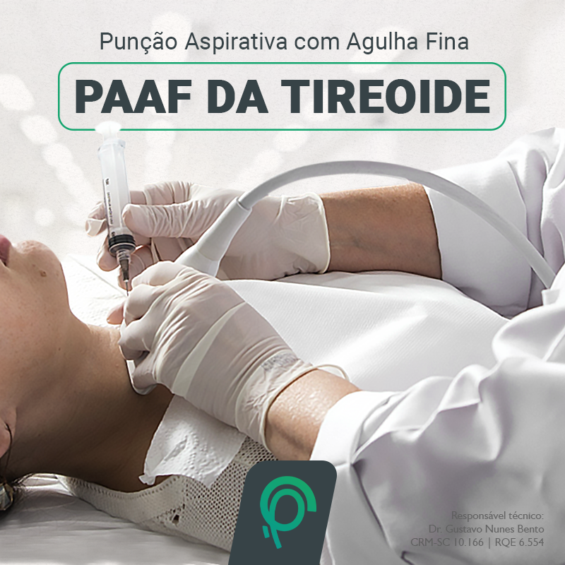 PAAF da tireoide_PESCOP